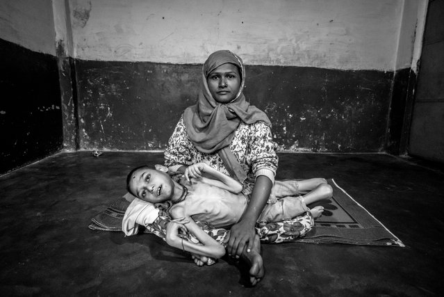 Sameer Hasan, 16 years old, with his mother Wahida Bee at home. Sameer was born to parents contaminated by a carcinogenic and mutagenic water supply. (Photo by Giles Clarke/Getty Images)