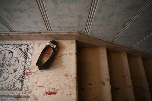 A picture taken on October 5, 2016 shows a shoe belonging to a victim at a make-shift hospital following reported air strikes on the rebel-held town of Douma, on the eastern outskirts of the Syrian capital Damascus. (Photo by Abd Doumany/AFP Photo)