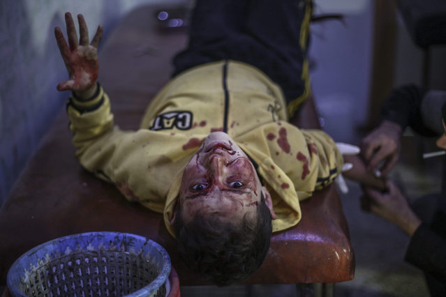 A Syrian child reacts as he receives first aid in a field hospital following an airstrike by forces loyal to the Syrian government in the rebel-held area of Douma, outskirts of Damascus, Syria, 10 November 2015. According to the opposition, at least ten civilians were killed in Syrian regime strikes on the rebel-held Douma on 10 November. (Photo by Mohammed Badra/EPA)