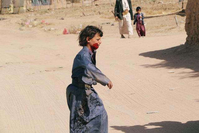 An injured boy cries as he flees an area where air strikes hit a house in Saada, Yemen February 27, 2018. (Photo by Naif Rahma/Reuters)