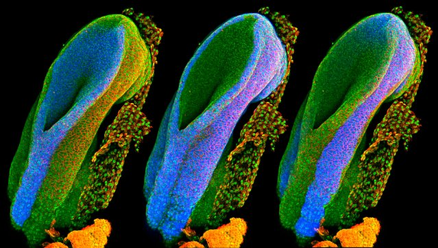 Developing spinal cord. This image shows a mouse's neural tube – the structure from which the spinal cord forms during pregnancy. The different images highlight the three main tissue types in the embryo. (Photo by Gabriel Galea/University College London/Wellcome Images)