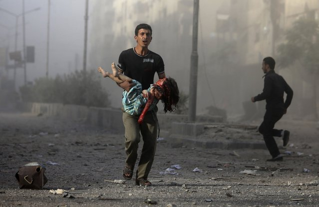 A man carries an injured girl, after what activists claim was five air strikes by forces loyal to Syria's President Bashar al-Assad in Douma, eastern al-Ghouta, near Damascus September 11, 2014. (Photo by Bassam Khabieh/Reuters)
