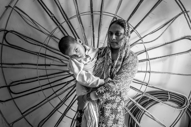 Mohd Anas, 7 years old, with his mother Kherunnisa at home in the Nawab Colony neighborhood. Mohd was born to parents contaminated by a carcinogenic and mutagenic water supply. (Photo by Giles Clarke/Getty Images)