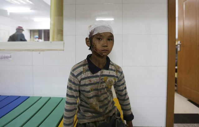 Yang Hongshun, 9, is seen at a hospital after he was injured in an earthquake in Ludian county of Zhaotong, Yunnan province August 3, 2014. A magnitude 6.3 earthquake struck southwestern China on Sunday, killing at least 175 people and leaving more than 180 missing and 1,400 injured in a remote area of Yunnan province, causing thousands of buildings, including a school, to collapse. (Photo by Wong Campion/Reuters)