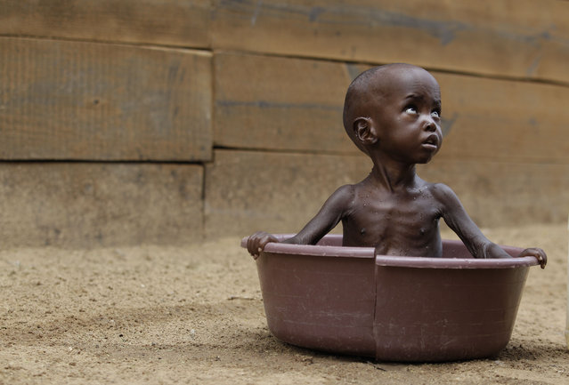 Two-year-old, Aden Salaad, looks up toward his mother, unseen, as she bathes him in a tub at a Doctors Without Borders hospital, where Aden is receiving treatment for malnutrition, in Dagahaley Camp, outside Dadaab, Kenya, Monday, July 11, 2011. (Photo by Rebecca Blackwell/AP Photo)