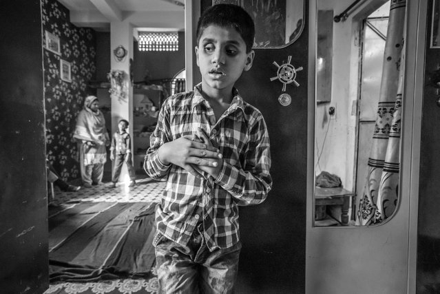 Saiful, 10 years old, at home in the Tila Jamalpura neighborhood. Saiful was born to parents contaminated by a carcinogenic and mutagenic water supply. This year marks the 31st anniversary of the 1984 Union Carbide gas tragedy that killed thousands of citizens of Bhopal within 72 hours and has gone on to claim thousands more as a result of the polluted environment. (Photo by Giles Clarke/Getty Images)