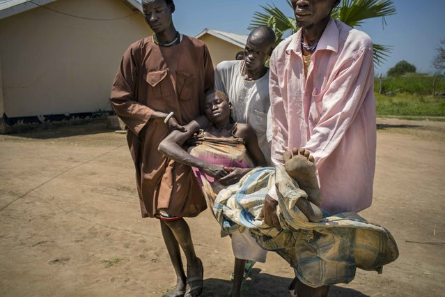 Panthou village, Aweil South county, Northern Bahr el Ghazal state, South Sudan on October 14, 2015. Thirty-two year old Arek Nuoi, mother of four, is carried by her family members to a hospital bed at Panthou Primary Health Care Center, where she will receive urgent treatment for acute malaria. She arrived unconscious, transported in a chair her family had tied to the seat of a bicycle, which they pushed for one and a half hours from their home village of Maper.  She had first shown signs of illness the previous night, complaining of headache and bodily pains. In the morning, she began to vomit and fainted. The health care center at Panthou is currently the only place where patients might be able to receive free treatment and medicine for malaria in the remote rural county of Aweil South. The center has only two staffs – both medical assistants – qualified to diagnose and treat patients, yet was treating approximately 150 malaria patients per day. In October 2015, the center had just received a supply of ACT oral medication for malaria, which they had been out of stock for two months. With the high number of patients, this new supply would be depleted in a week or two. The center also had a low stock of quinine, which they reserved for serious cases. There were no RDTs (rapid detection tests) in stock, so diagnosis could only be done clinically based on symptoms observed. (Photo by Diana Zeyneb Alhindawi)