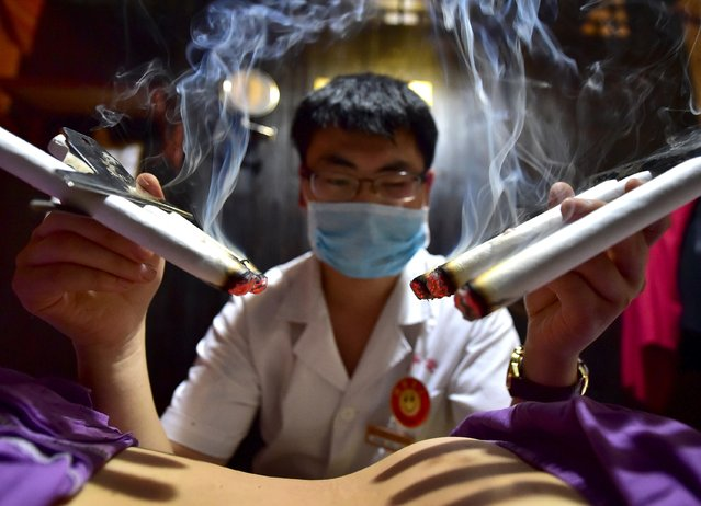 A therapist applies traditional moxibustion treatment on a patient in Yiwu, Zhejiang province, July 13, 2015. Many Chinese believe that applying herbs on acupuncture points during summer can prevent diseases and ailments in the winter. (Photo by Reuters/China Daily)