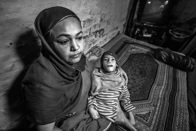 Sohaib, 10 years old, with his mother Firoza Bee at home in the Tila Jamalpura neighborhood. Sohaib was born to parents contaminated by a carcinogenic and mutagenic water supply. (Photo by Giles Clarke/Getty Images)