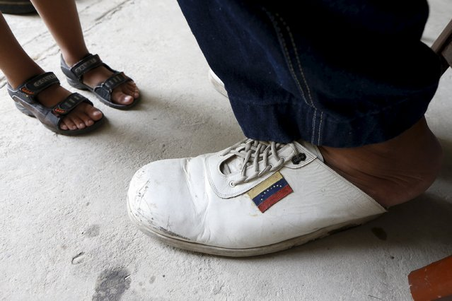 Jeison Rodriguez (R), 19, the living person with the largest feet in the world, sits in front of his nephew at his house in Maracay, Venezuela, October 14, 2015. (Photo by Carlos Garcia Rawlins/Reuters)