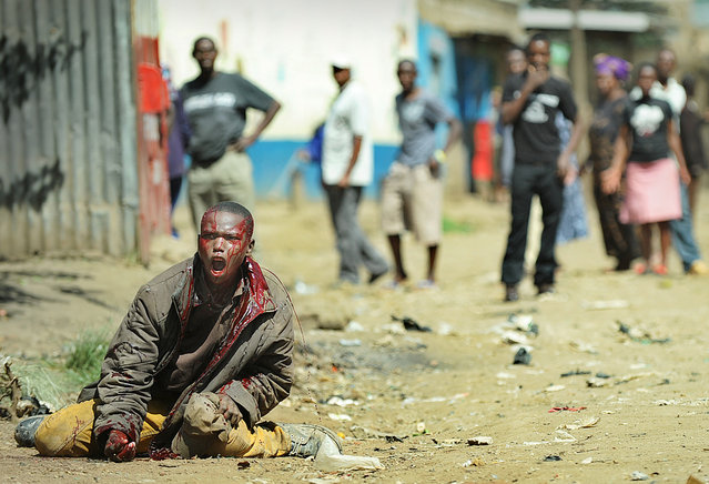 A man bleeds out after he was attacked with machettes by people of Somali ethinicity on November 19, 2012 during inter-ethnic clashes in Nairobi's Eastleigh suburb. Clashes broke out a day after a bomb exploded in a minibus, blamed on sympathisers of Somalia's Al-Qaeda-linked Shebab insurgents, killing seven people and leaving several wounded. A day after the blast, non-Somali Kenyans turned on Somalis and attacked their shops and stalls, accusing them of being responsible for the bomb. No one has claimed responsibility for the blast.  (Photo by Tony Karumba/AFP Photo)
