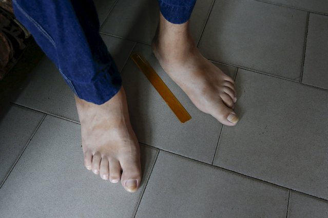 A 30 cm ruler is seen next to the feet of Jeison Rodriguez, 19, the living person with the largest feet in the world, at his house in Maracay, Venezuela, October 14, 2015. (Photo by Carlos Garcia Rawlins/Reuters)