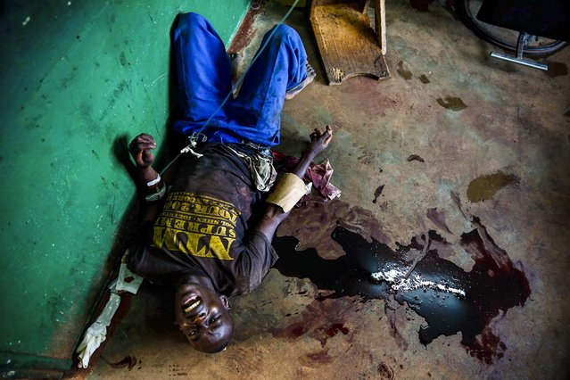 A young man screams in pain as he lies in a pool of blood on the floor of Bangui's hospital, Bangui, Central African Republic following a day-long gun battle between Seleka soldiers and Christian militias, on December 5, 2013. (Photo by Jerome Delay/Associated Press)