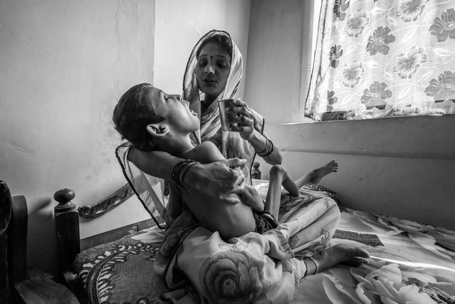 Devank Sahu, 8 years old, with his mother Sunita Sahu at home in the Risaldar Colony neighborhood. Devank was born to parents contaminated by a carcinogenic and mutagenic water supply. (Photo by Giles Clarke/Getty Images)