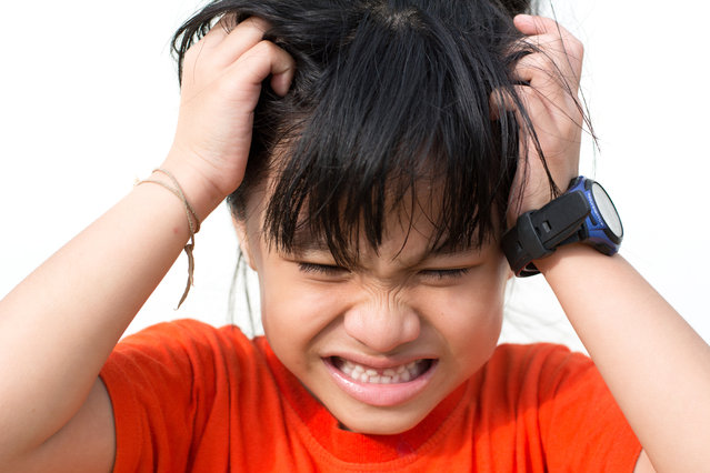 Mad child, because lice on the head. (Photo by Getty Images/iStockphoto)
