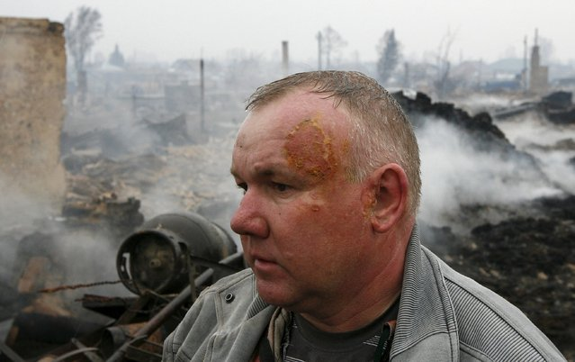 Local resident Mikhail Kychakov, who was injured while saving his mother from a burning house, stands amidst debris of a building in the settlement of Shyra, damaged by recent wildfires, in Khakassia region, April 13, 2015. (Photo by Ilya Naymushin/Reuters)