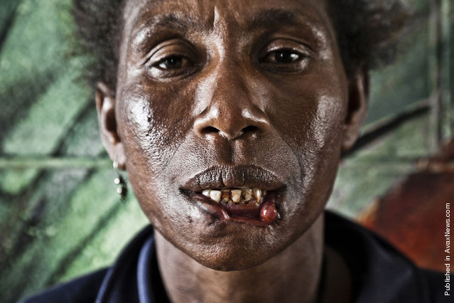 """Helena Michael (40), mother of seven children. On December 27th (2011) she was attacked by a """"cannibal"""" near the Boroko police station, in the central part of Port Moresby. The attacker bit off Helena's lower lip and wanted to sink his teeth into her throat. The woman managed to escape by kicking her assailant in his testicles and biting three of his fingers forcing him to release her. Police arrested the man and found out that it was his third attempt to eat human flesh. Having spent three days in the hospital, Helena went to the police station to initiate criminal proceedings against the cannibal, but discovered that he had been released due to the lack of complaints. Helena is still waiting for the hospital's approval to start surgery for skin graft on her missing lip"""