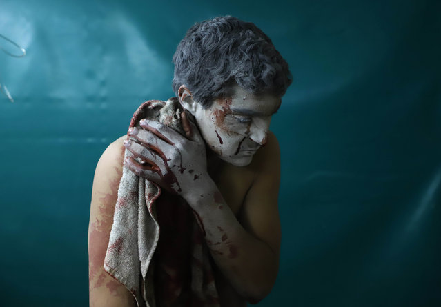 A wounded Syrian man waits for treatment at a makeshift clinic during Syrian government air strikes on Zamalka, in the rebel enclave of Eastern Ghouta on the outskirts of Damascus on March 13, 2018. More than 1,180 civilians have been killed since regime forces on February 18 launched an air and ground assault on the enclave, the Britain-based Syrian Observatory for Human Rights monitor says. Eastern Ghouta's 400,000 residents have been living under government siege since 2013, facing severe food and medecine shortages even before the latest assault. (Photo by Amer Almohibany/AFP Photo)