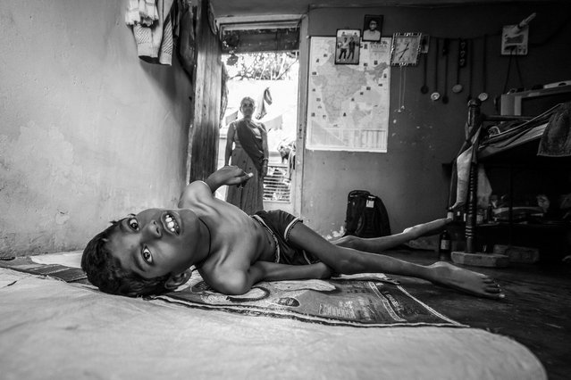 Raj, 10 years old, with his mother Puna Bai at home in the Shankar Nagar neighborhood. Humera was born to parents contaminated by a carcinogenic and mutagenic water supply. (Photo by Giles Clarke/Getty Images)