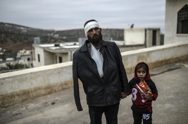 """An injured Syrian man who just arrived on the Syrian side of the Bab al-Hawa border crossing between Syria and Turkey waits with his child outside a hospital on December 16, 2016. The Syrian government suspended the evacuation of the last rebel-held parts of Aleppo, but a military source denied a Russian statement that the operation was """"complete"""". (Photo by Bulent Kilic/AFP Photo)"""
