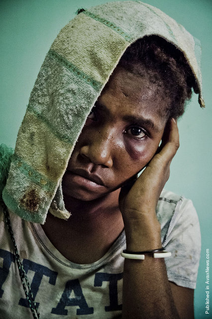 Banil Yalomba (16) came to the Antenatal Clinic of Port Moresby after having been sexually assaulted by her ex-boyfriend. A day after they separated, her former partner came to her parents' house and dragged Banil to a bush area, threatening her with a knife. There he beat her and raped her. Banil's father managed to find his daughter laying unconscious on the ground and brought her to the hospital