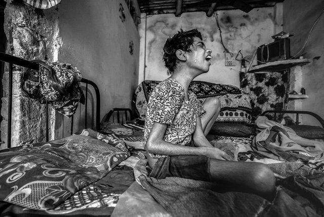 Huma, 14 years old, at home in the J.P. Nagar neighborhood. Huma was born to parents contaminated by a carcinogenic and mutagenic water supply. (Photo by Giles Clarke/Getty Images)