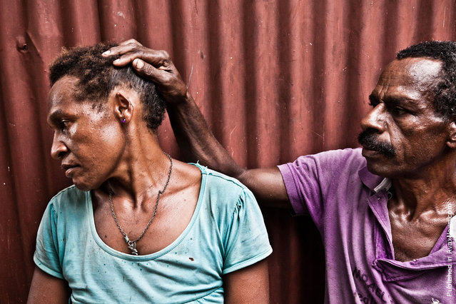 """Richard Bal (45) shows disfigured ear of his wife Agita Bal (32) in the Morobe block, Port Moresby. In December of 2010 after coming home drunk, Richard took a bush-knife and cut half of Agita's left ear. He spend one night in the police station and was released next morning due to """"insufficient evidence"""" to initiate criminal proceedings. Agita's relatives didn't allow her to leave Richard, having received 500 kina (about 240 USD) from him for the """"potential damage"""""""