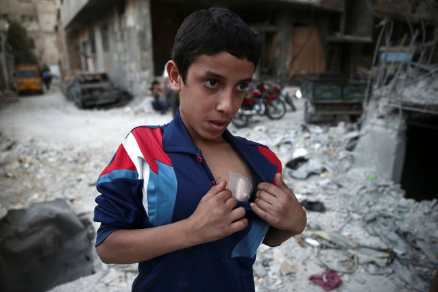 A boy shows off his wound near a damaged building after an airstrike yesterday in the rebel held Douma neighbourhood of Damascus, Syria October 4, 2016. (Photo by Bassam Khabieh/Reuters)
