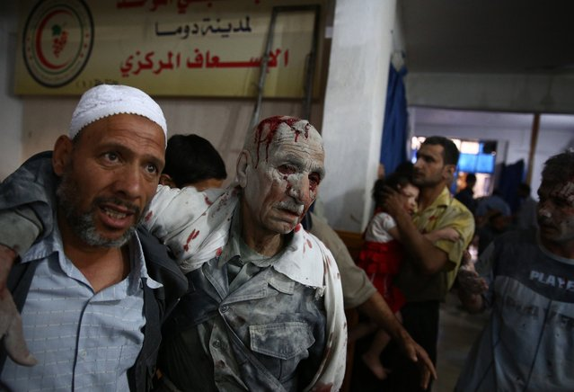 Wounded people arrive at a make-shift hospital in the rebel-held area of Douma, east of the Syrian capital Damascus, following reported air strikes by regime forces, on June 30, 2015. (Photo by Abd Doumany/AFP Photo)