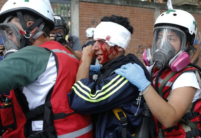 Green cross volunteers evacuate an injured demonstrator on a motorcycle during a march against hunger in Caracas, Venezuela, Saturday, June 3, 2017. Hundreds of Venezuelans marched to demand that the government remedy the severe shortages and high costs of basic foods such as milk, cornmeal , oil, sugar, rice, eggs, among others. The march was suppressed by agents of the National Guard. (Photo by Ariana Cubillos/AP Photo)