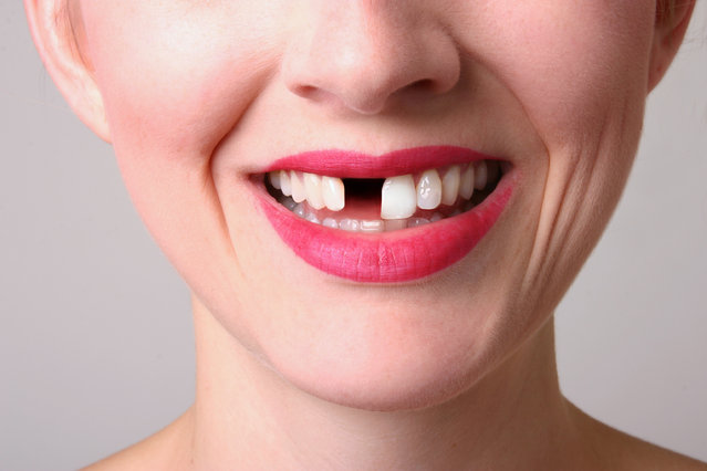 A 30 something woman with a missing tooth. (Photo by Sharon Dominick/Getty Images)