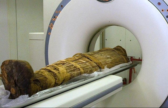 Handout photo issued by the Lancet of the Mummy of Hatiay in a scanner, March 11, 2013. A macabre study of mummified corpses shows that heart attacks and strokes may have plagued the ancient world as well as the modern one. Scientists studied 137 mummies from Egypt and other locations around the world dating back 4,000 years. More than a third showed signs of likely or definite hardening and narrowing of the arteries. The condition, known as atherosclerosis, is the primary cause of heart attacks and strokes caused by lack of blood to the brain. Until now it had been widely assumed that today's high rates of heart and artery disease were chiefly the result of unhealthy modern lifestyles. Diets rich in saturated fat encourage the deposit of fatty layers on artery walls which harden over time. As a result blood vessels become narrower and the flow of blood is impeded. When insufficient blood reaches the heart muscle or brain it can trigger a heart attack or stroke. The latest findings, published in The Lancet medical journal, suggests that other factors besides diet and lifestyle play a leading role in atherosclerosis. (Photo by The Lancet/PA Wire)
