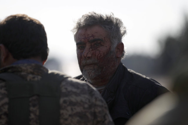 Blood is seen on a rebel fighter's face after a mine exploded on the outskirts of the northern Syrian town of al-Bab, Syria January 28, 2017. (Photo by Khalil Ashawi/Reuters)
