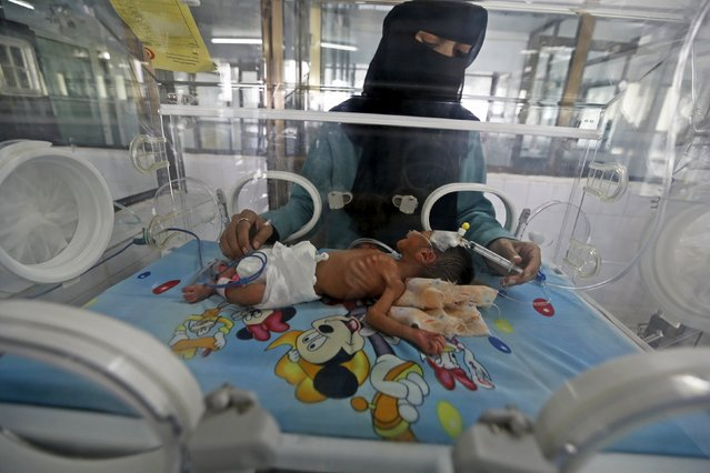 A doctor attends to a newborn baby in a special care unit at a hospital in Yemen's capital Sanaa May 7, 2015. A shortage of fuel has crippled hospitals and food supplies in recent weeks in Yemen, and the U.N.'s World Food Programme has said its fuel needs have leapt from 40,000 litres a month to 1 million litres. (Photo by Khaled Abdullah/Reuters)
