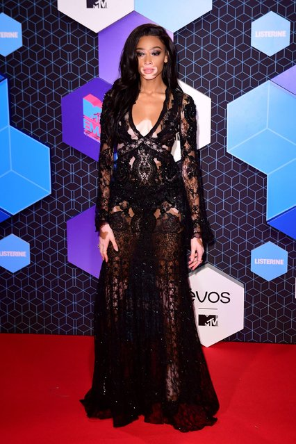 Model Winnie Harlow poses for photographers upon arrival at the MTV European Music Awards 2016 in Rotterdam, Netherlands, Sunday, November 6, 2016. (Photo by PA Wire)