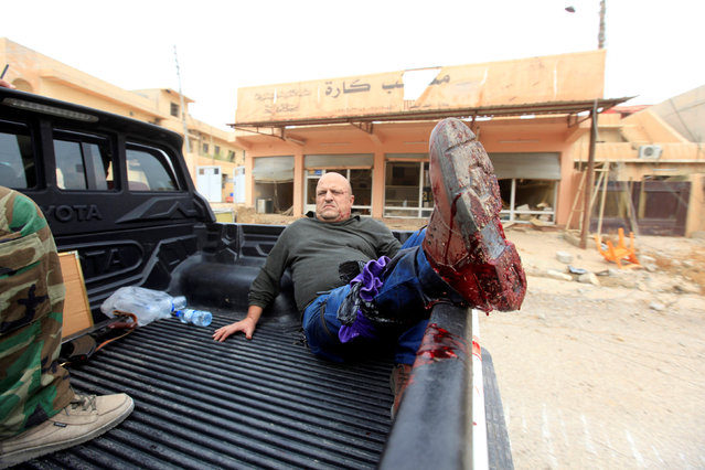 A Yazidi man is injured from a bomb attack in the town of Bashiqa, after it was recaptured from the Islamic State, east of Mosul, Iraq November 10, 2016. (Photo by Alaa Al-Marjani/Reuters)