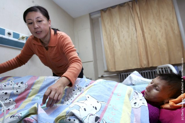 12-year-old Chinese girl Sun Yangyang suffering from Cockayne syndrome