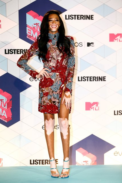 Winnie Harlow poses for photographers backstage, at the MTV European Music Awards 2016 in Rotterdam, Netherlands, Sunday, November 6, 2016. (Photo by Vincent Jannink/AP Photo)