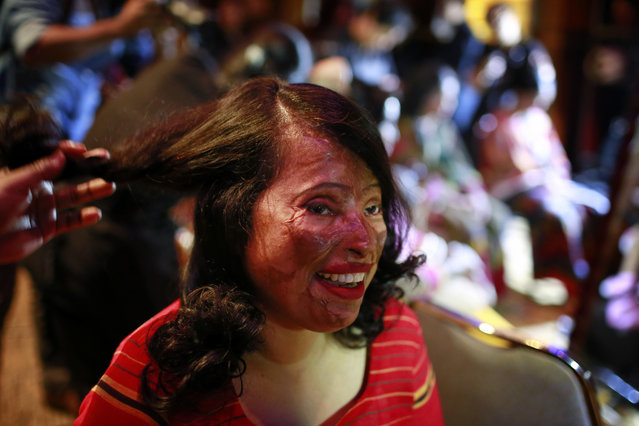 "In this March 7, 2017 photo, a Bangladeshi acid attack survivor gets her make up applied during the event ""Beauty Redefined"" in Dhaka, Bangladesh. (Photo by A.M. Ahad/AP Photo)"