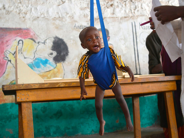 A malnourished child is processed by an aid worker for a UNICEF- funded health programme catering to children displaced by drought, at a facility in Baidoa town, the capital of Bay region of south-western Somalia where the spread of cholera has claimed tens of lives of IDP's compounding the impact of drought on March 15, 2017. The United Nations is warning of an unprecedented global crisis with famine already gripping parts of South Sudan and looming over Nigeria, Yemen and Somalia, threatening the lives of 20 million people. For Somalis, the memory of the 2011 famine which left a quarter of a million people dead is still fresh. (Photo by Tony Karumba/AFP Photo)
