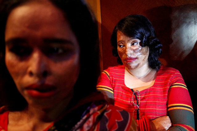 "Acid attack survivors wait in the back stage prior to participate in a fashion show titled ""Beauty Redefined"" organized by ActionAid Bangladesh in Dhaka, Bangladesh, March 7, 2017. (Photo by Mohammad Ponir Hossain/Reuters)"