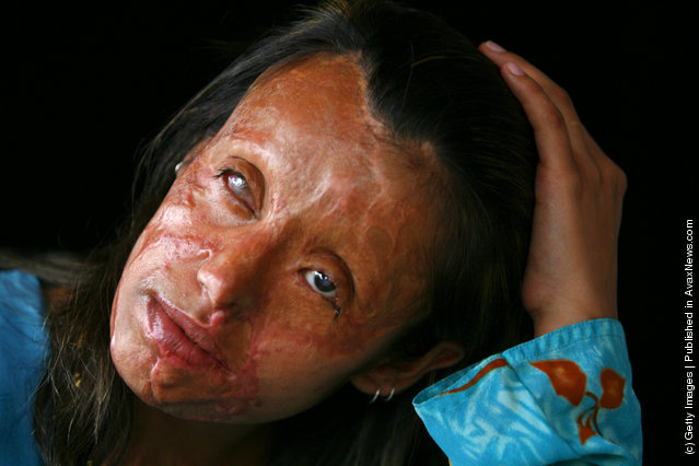 Saira Liaqat, 22, a victim of acid violence who was burned 4 years ago