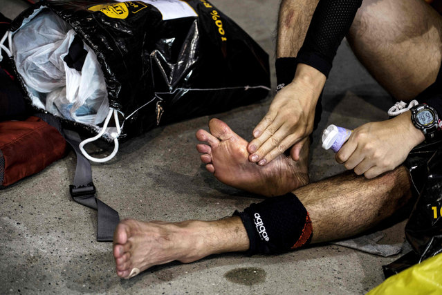 Ultra- trailers massages his feet at a refreshment post on September 2, 2017 in Courmayeur, Italy, during the 15 th edition of the Mount Blanc Ultra Trail (UTMB), a 170 km race around the Mont Blanc crossing France, Italy and Switzerland. (Photo by Jeff Pachoud/AFP Photo)