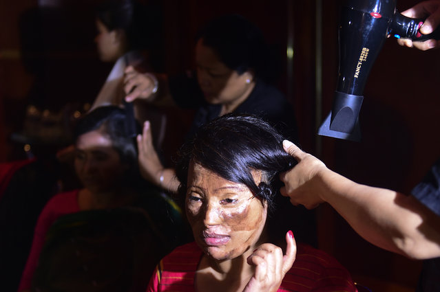 "A Bangladeshi acid attack survivor has her hair done backstage prior to the fashion show ""Beauty Redefined"" by designer Bibi Russell featuring acid attack survivors in Dhaka on March 7, 2017. (Photo by AFP Photo/Stringer)"