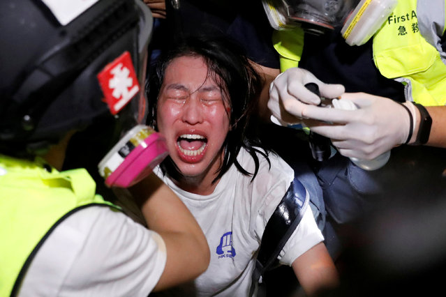 An anti-extradition bill protester receives medical attention after tear gas and pepper spray was used by riot police during a protest, outside Mong Kok police station, in Hong Kong, China on September 2, 2019. (Photo by Tyrone Siu/Reuters)