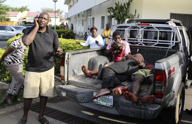 Injured victims of a bomb attack wait at the back of a pickup truck at the Asokoro General Hospital in Abuja, April 14, 2014. (Photo by Afolabi Sotunde/Reuters)