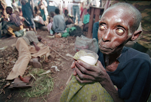 A starving woman sips milk at a makeshift health clinic in Ruhango, 30 miles southwest of Kigali, Rwanda, Monday, June 6, 1994. Thousands of civilians caught in the fighting between government troops and the Rwanda Patriotic Front rebels have taken refuge in Ruhango, but have no access to sufficient medial care. (Photo by Jean-Marc Bouju/AP Photo)