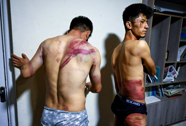 In this picture taken on September 8, 2021, Afghan newspaper Etilaatroz journalists Neamat Naqdi (L) and Taqi Daryabi show their wounds in their office in Kabul after being released from Taliban custody. Two Afghan journalists have shown off ugly welts and bruises after being beaten and detained for hours by Taliban fighters for covering a protest in the Afghan capital. (Photo by Wakil Kohsar/AFP Photo)