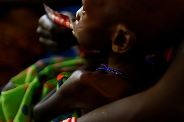 """A mother feeds her child with a peanut-based paste for treatment of severe acute malnutrition in a UNICEF supported hospital in the capital Juba, South Sudan, January 25, 2017. South Sudan on Monday declared famine in some parts of the country, with more than three years of war leaving nearly five million hungry in what aid groups called a """"man-made"""" tragedy. Isaiah Chol Aruai, chairman of South Sudan's National Bureau of Statistics, said some parts of the northern Greater Unity region """"are classified in famine, or ... risk of famine"""". Aid agencies said 100,000 people are affected by the famine, which threatens another one million people in the coming months. """"A formal famine declaration means people have already started dying of hunger. The situation is the worst hunger catastrophe since fighting erupted more than three years ago"""", said the statement by the World Food Programme (WFP), UN children's agency UNICEF and the Food and Agricultural Organisation (FAO). (Photo by Siegfried Modola/Reuters)"""