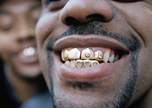 Ramel Gold sports jewel studded gold teeth at the Fulton Mall in the Brooklyn borough of New York City on December 29, 1994. The latest faddish fashion is worn over the teeth. (Photo by Adam Nadel/AP Photo)